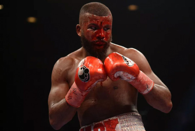 WARNING: one of the nastiest, bloodiest cuts in Boxing ever